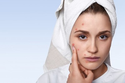 Girl pointing at pimple