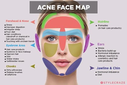 Face Map of Acne