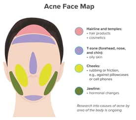 Chin Acne Face Map